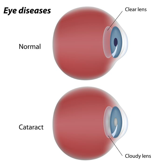 Cataracts Exams Toms River