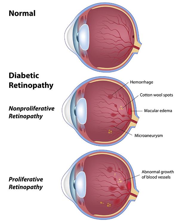 5ce29b365b9 Diabetic Eye Problems near Lakewood
