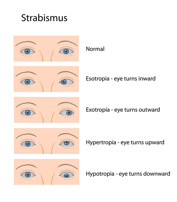 Strabismus Exams in Toms River